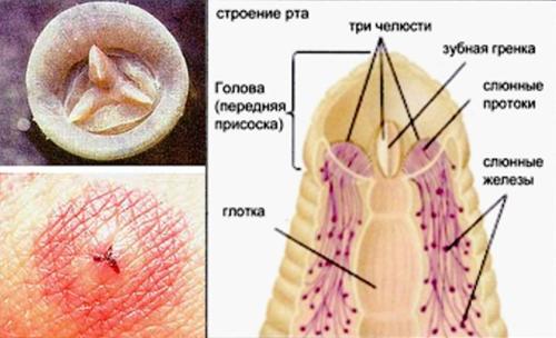 Строение головы пиявки и след от ее укуса