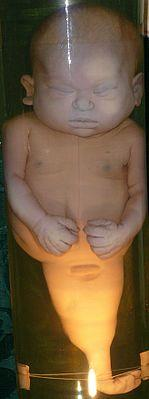 Тело ребёнкасо сросшимися ногами вКунсткамере,Санкт-Петербург.