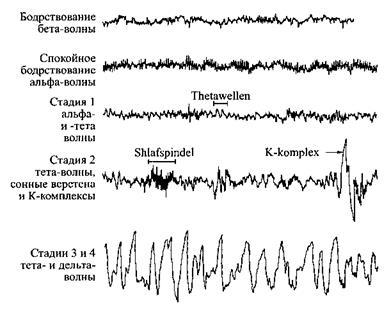 Десять секунд из пяти типичных ЭЭГ различных состояний сна и бодрствования.