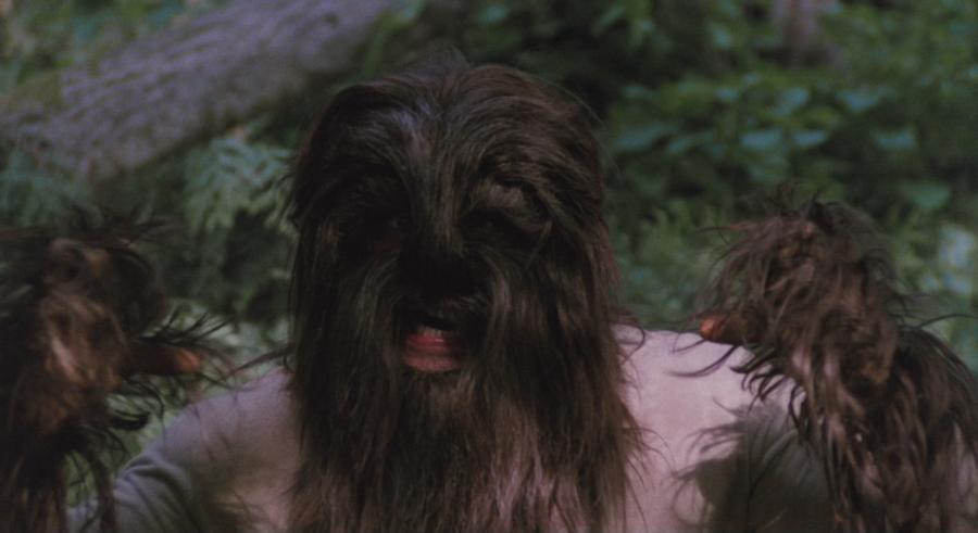 Un hombre que sufre una enfermedad rara, debido a cotiora, todo su cuerpo está cubierto de pelo largo y espeso (los lugareños lo confunden con un hombre lobo, pero siempre se ve así)