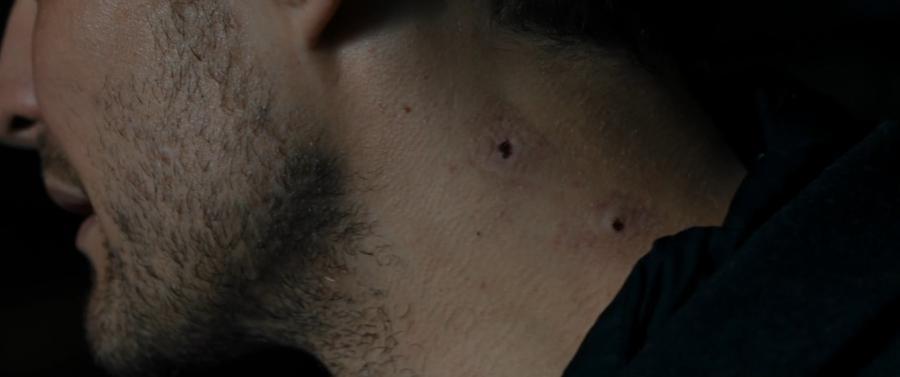 След от укуса вампира на шее жертвы